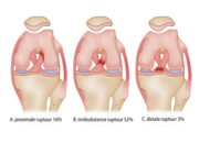 Anatomie, trauma en herstel van de voorste kruisband (AF, SF, VD)