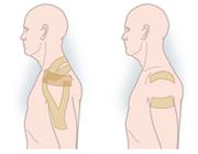 Wat is het klinisch effect van elastische tape bij schouderklachten?