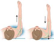 Corrigeren van verminderde scapulacontrole bij schouderklachten
