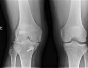 Beschermt een voorstekruisbandreconstructie tegen artrose van de knie?