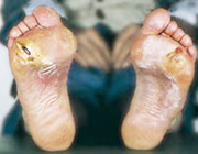 De invloed van stofwisselingsstoornissen op bindweefsel