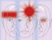 De fysiotherapeut als behandelaar van hoofdpijn