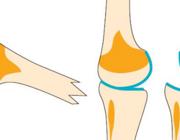 Een bindweefselfysiologische kijk op artrose