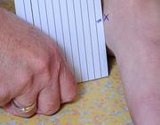 Casus: een anteriore  knieklacht is (g)een enkel probleem
