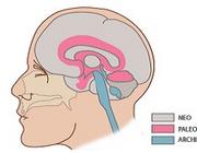Neurorevalidatie in de eerste lijn