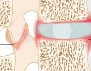 Vroege herkenning van axiale spondyloartritis door de fysiotherapeut