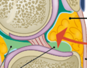 Patellofemoraal impingement van het vetlichaam van Hoffa