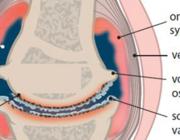 De KNGF-richtlijn Artrose heup-knie 2018