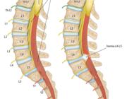 Het lumbosacraal radiculair syndroom vanuit neurologisch perspectief (BD)