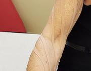 Wat is het effect van kinesiotaping op borstkankergerelateerd lymfoedeem van de arm?