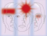 De fysiotherapeut als behandelaar van hoofdpijn (AF, BD, MT)