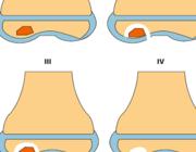 Osteochondritis dissecans van de knie (AF/BD)