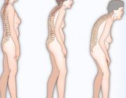 Osteoporose in beweging (AF, BD)