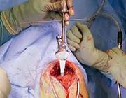 De totale schouderprothese
