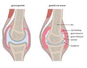 Artrose, een veelvoorkomende aandoening