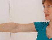 Werkgerelateerde nekpijn graad II met een afwijkend beloop