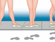 Orthopedisch-chirurgische behandeling bij balletletsels van de onderste extremiteit bij professionele dansers (BD)