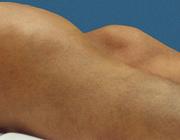 Hemofilie, een hematologische aandoening met gevolgen voor het bewegingsapparaat
