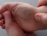 De fysiotherapeutische beoordeling van gesloten polstraumata