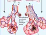 Fysiotherapie bij chronisch obstructief longlijden (AF, BD)